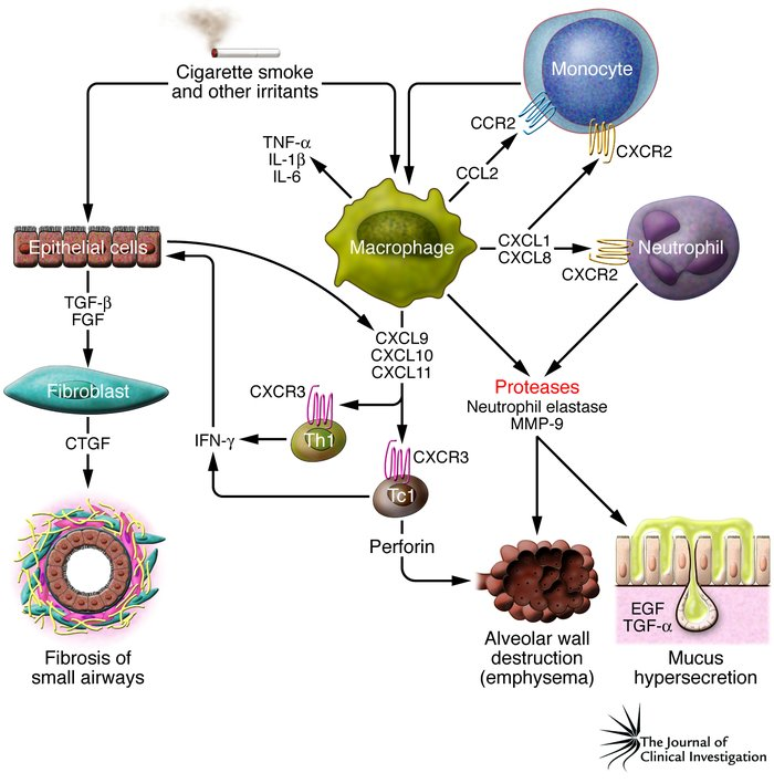 Fig 2. Cytokines involved in COPD.